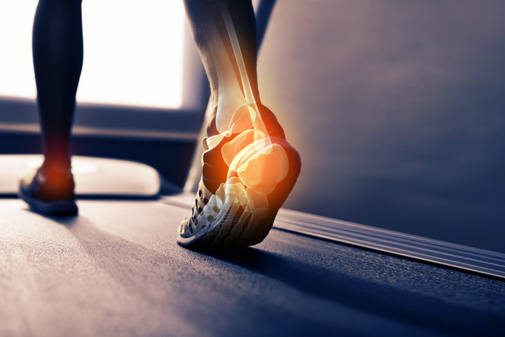 Heel Pain Webinar with Simon Bartold